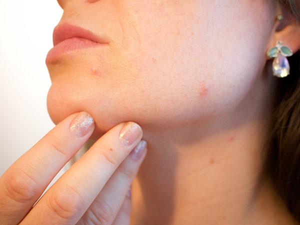 Curare-lesioni-acneiche